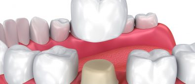 dental crowns