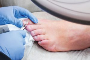 ingrown toenail surgery