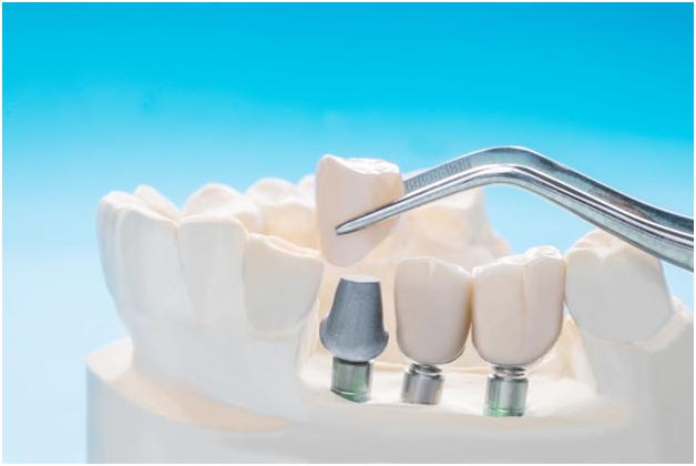 Benefits Of Getting Dental Implants