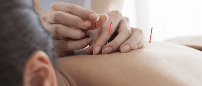 Health Conditions That Acupuncture Can Treat